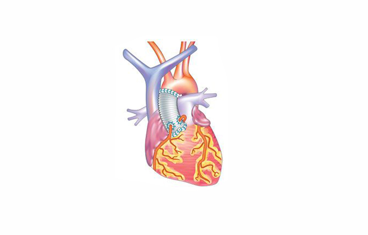 Case in Cardiac Surgery